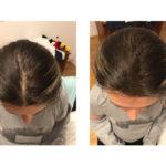revolumen-hair-vlakna-za-proredjenu-kosu-9